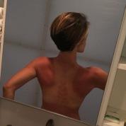 Sunburn...ouch